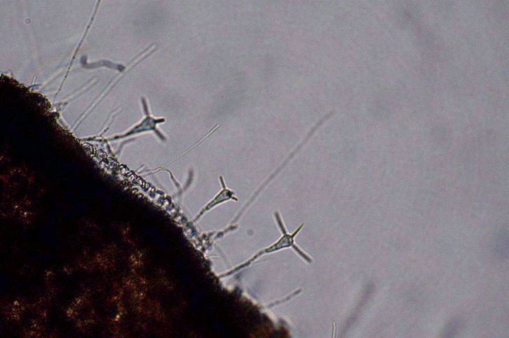 Microscopic image of Clavariopsis aquatica, an aquatic hyphomycete. Image: Wikipedia